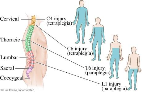tetraplegia recupero funzioni motorie